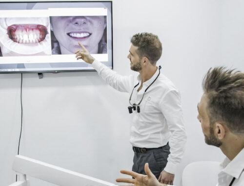 Qué es el diseño digital de sonrisa