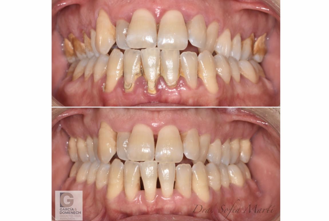 Tratamiento para la periodontitis 2