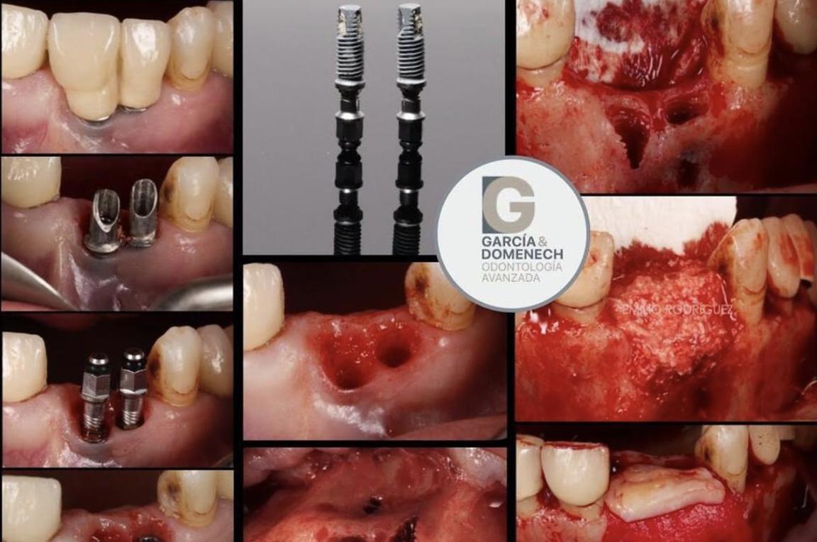 Cirugía dental en Valencia. Cirurgia dental a València