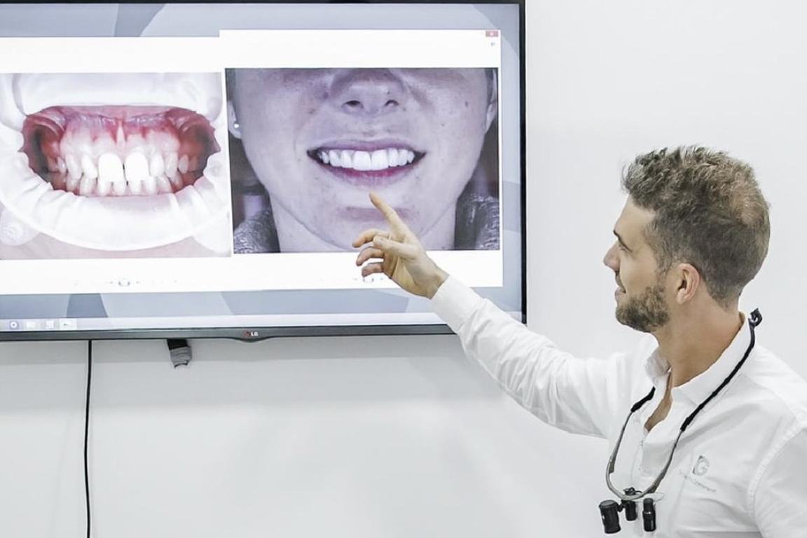 Estética dental en Valencia. Estètica dental a València