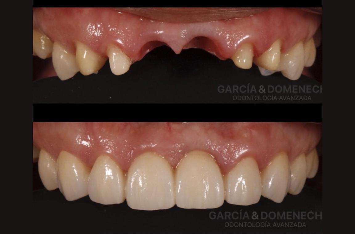 Implantes dentales en Valencia