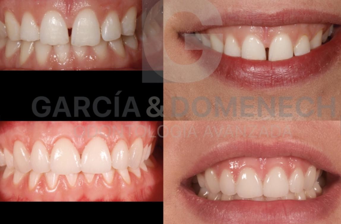 Carillas dentales en Valencia